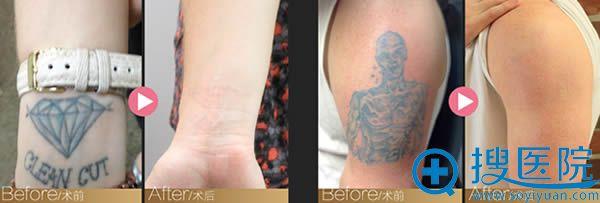 皮秒祛纹身前后对比效果