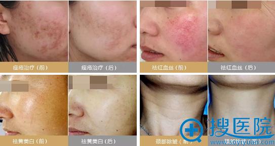 济南伊美尔美颜微针改善皮肤问题案例