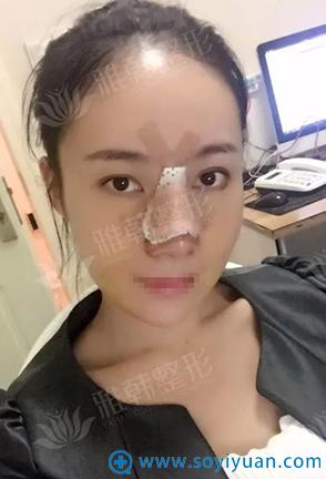 全肋骨隆鼻手术后3天恢复效果