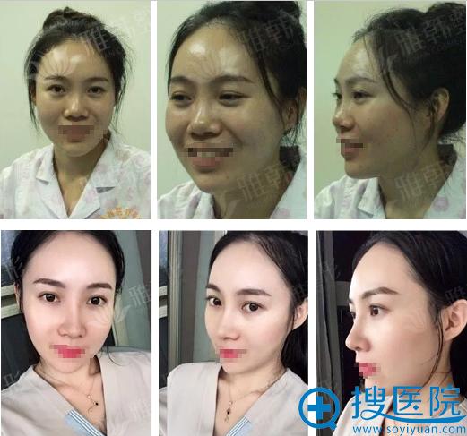 宁波雅韩龚涛全肋骨隆鼻术后7天对比效果图