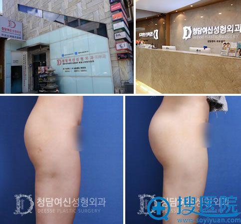 韩国女神整形医院及吸脂丰臀案例