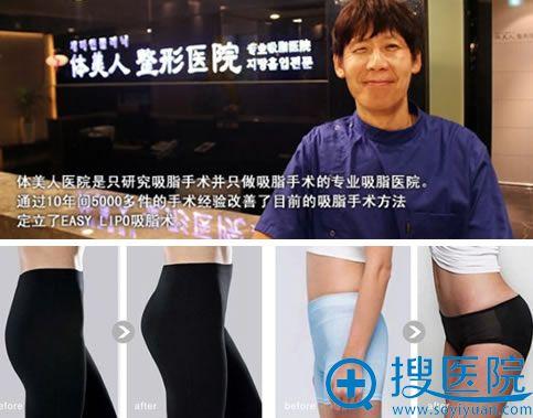 韩国体美人整形医院及吸脂丰臀案例