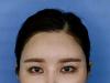 杭州线雕哪里做的好?杭州时光整形医院面部线雕真人秀案例分享