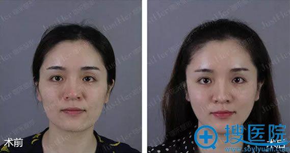 宁波珈禾整形面部提升案例