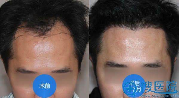 雍禾医院植发际线术后6个月前后对比效果