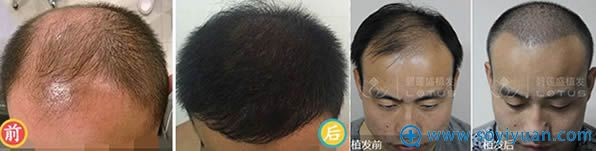 碧莲盛头发种植效果对比图