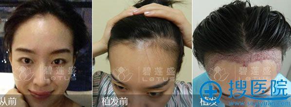 碧莲盛植发医院发际线种植案例