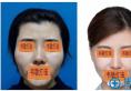 快来围观上海九院韦敏教授做的鼻综合修复案例图效果怎么样