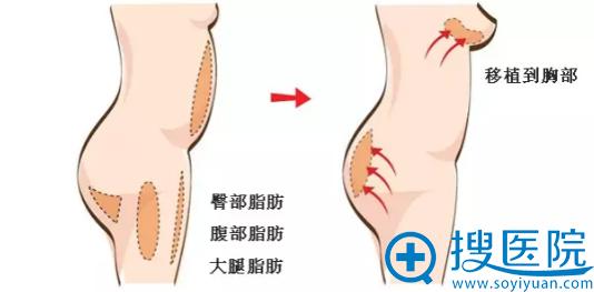 自体脂肪隆胸脂肪抽取填充部位演示图