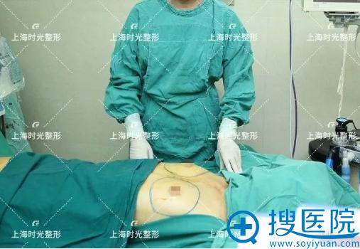 隆胸术前画线