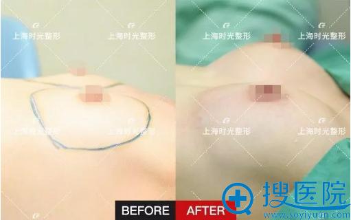 自体脂肪隆胸术后即刻效果