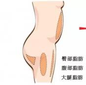 上海时光做填充怎么样 张晶医生自体脂肪隆胸案例过程图大揭秘