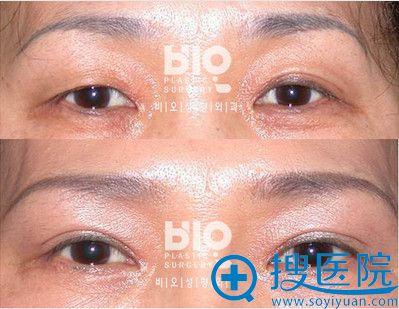 韩国bio曹仁昌埋线双眼皮修复案例