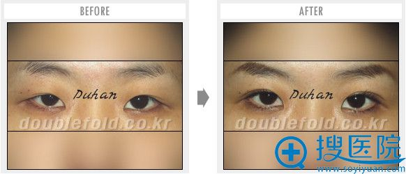 韩国枓翰整形外科整形医生申枓翰埋线双眼皮修复对比案例
