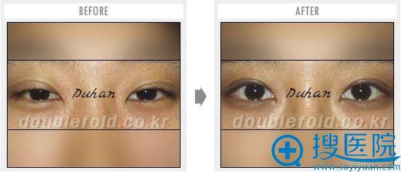 韩国枓翰整形外科整形申枓翰双眼皮过宽修复案例