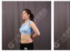 看我5月份找上海华美何斌做过的上半身吸脂案例效果图怎么样