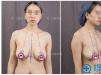 乳房下垂怎么办?上海华美李健乳房悬吊提升术后恢复图片分享