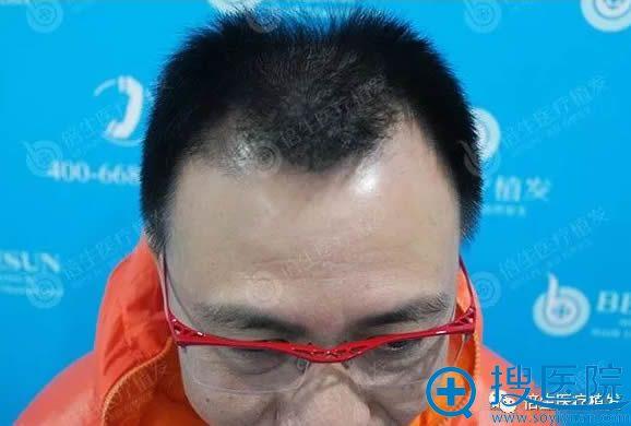在广州倍生植发前的照片