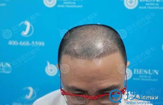 植发际线术后第8天的效果