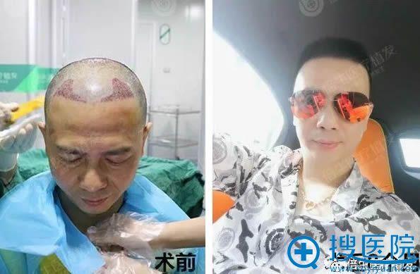 在广州倍生植发种植发际线前后对比照