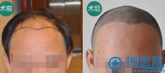 广州倍生种植发际线前后对比照