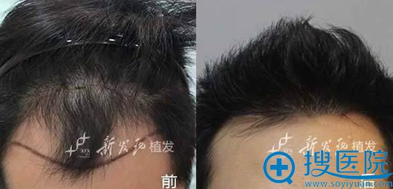 广州新发现植发际线前后对比案例