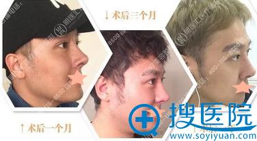 大连明医汇李耀宇鼻综合术后1年侧面恢复过程图
