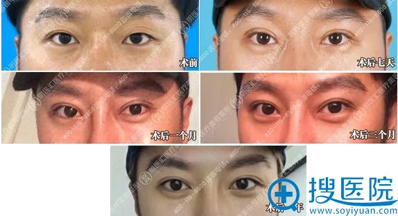 大连明医汇刘威双眼皮+开眼角一年恢复过程图