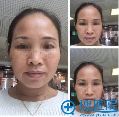 深圳香蜜丽格整形美容医院超皮秒祛斑治疗前
