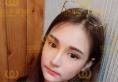 杭州华山哪个医生做鼻子好?高俊明鼻综合隆鼻40天案例告诉你