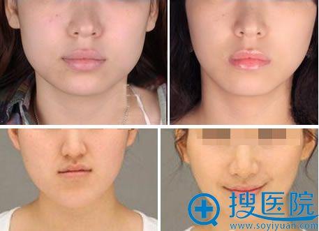 西美注射瘦脸针的案例图