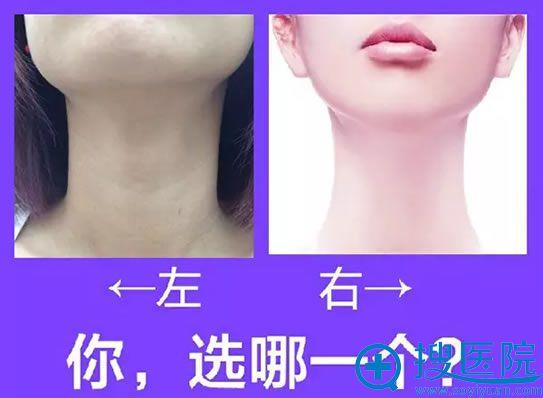 如何去除颈部的皱纹