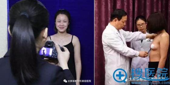 太原丽都王新灿假体丰胸术前面诊设计方案