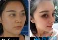 广元朗睿整形隆鼻怎么样?肋软骨+射极峰假体隆鼻蜕变过程分享
