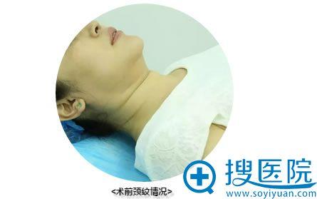 术前颈纹的情况
