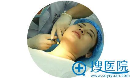 消除颈纹第二部嗨体注射