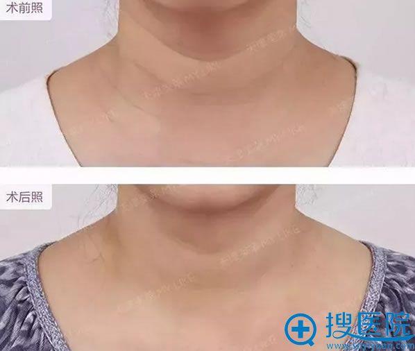 在天津美莱整形医院祛颈纹前后对比效果