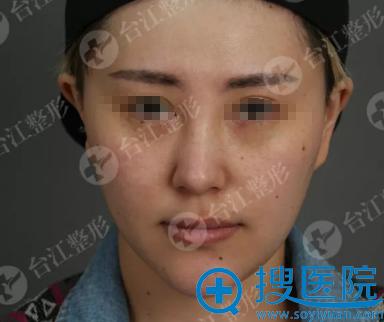 注射瘦脸治疗前正面照