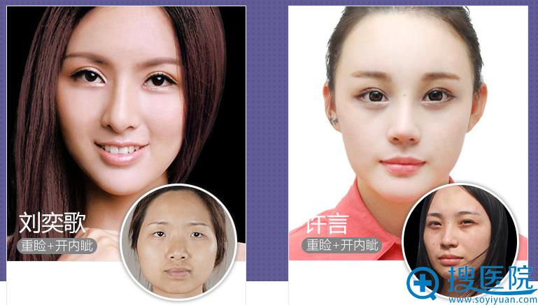 上海美莱整形医院双眼皮案例