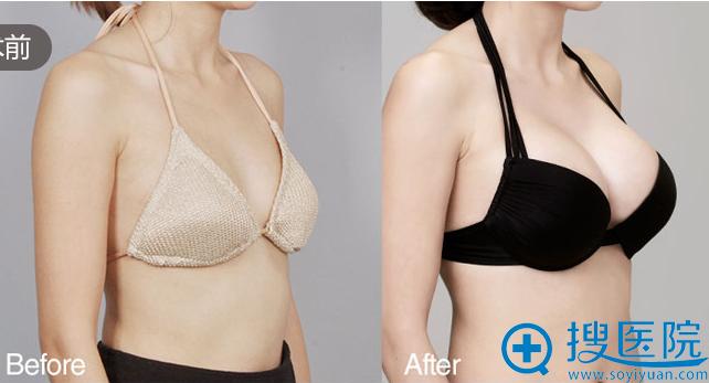 上海美莱自体脂肪隆胸案例