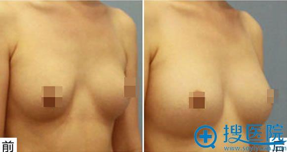 乳房不对称矫正手术案例效果