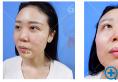 看我找上海华美张朋主任做的鼻综合隆鼻和瘦脸案例效果怎么样