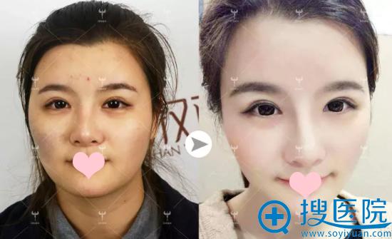 武汉亚韩医院注射前后对比图