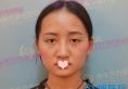 广西隆鼻哪里好?南宁东方整形医院鼻综合修复案例过程图片分享