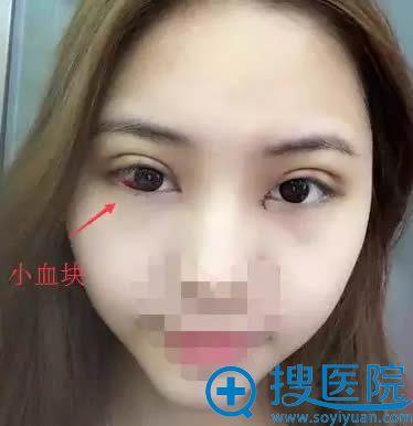 全切双眼皮和开内眼角拆线后的效果
