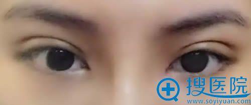 蚌埠美莱坞张迪做全切双眼皮术后20天的恢复效果