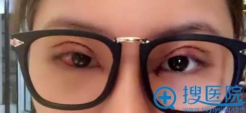 全切双眼皮术后第2天的照片