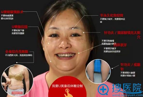 在广州华美整形医院做吸脂瘦身和U美极前的样子