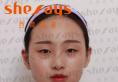 22岁的我找四川成都西婵整形医院聂晶莹医生做了欧式平行双眼皮