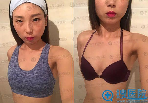 在华美做隆胸手术前的照片